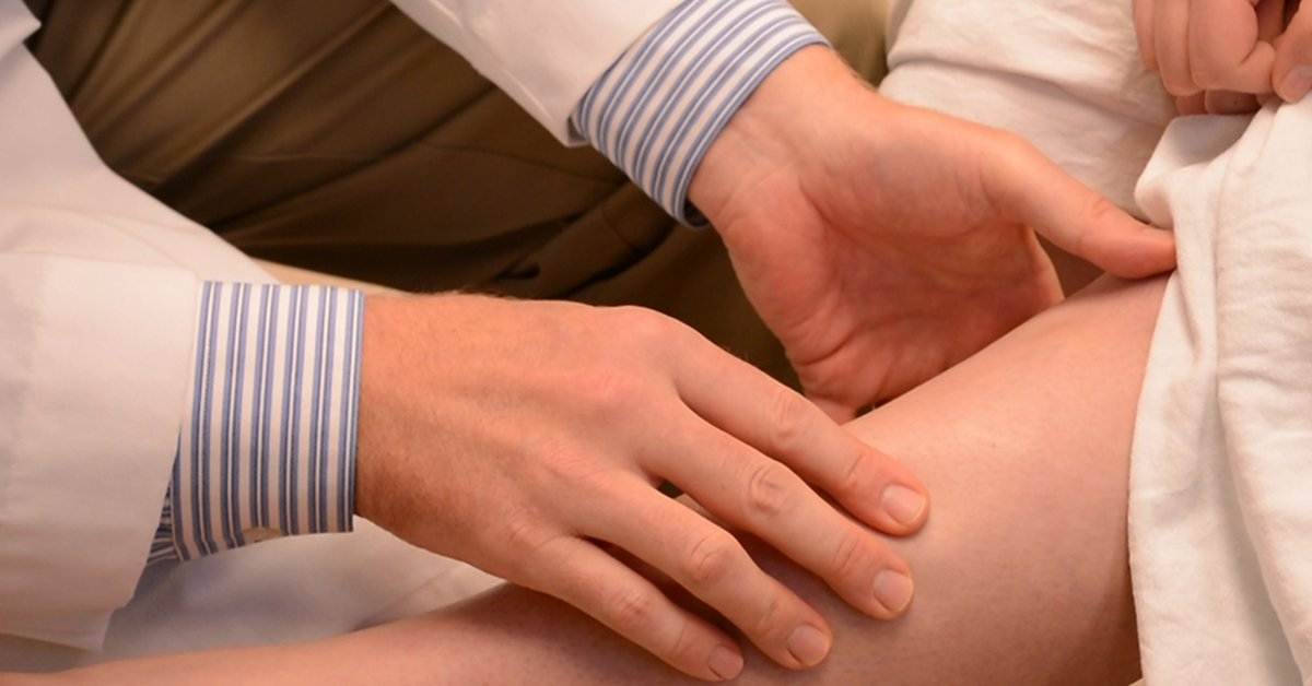 A physician screens for varicose and spider veins.